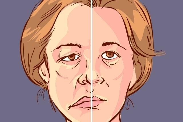 Vacinas da Coronavac, Pfizer e Moderna podem causar paralisia facial?